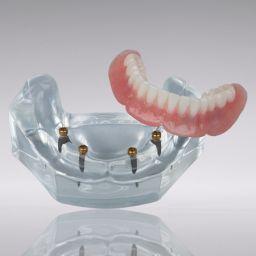 LODI LOCATOR® Schaumodell, UK, 4 x LODI Mini-Implantate, Ø 2.9