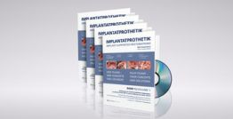 DVD Kompendium IMPLANTATPROTHETIK